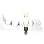 dentalimplants4